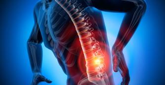 Rückenschmerzen Kreuzschmerzen